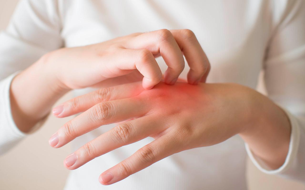 afecciones bacterianas de la piel